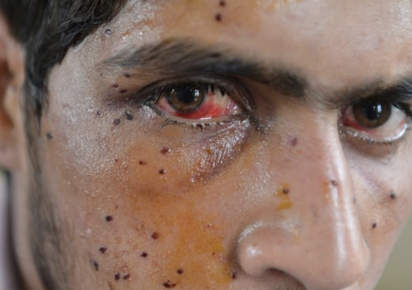 Fact-Sheet on Human Rights Violations in Indian Occupied Jammu and Kashmir (IoK), February 2019